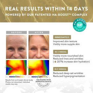 ECLAT Anti Aging Hyaluronic Acid Serum with 2% HA + 10 Antioxidants 100% Vegan & Dermatologist Developed